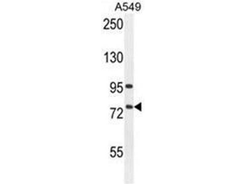 Western Blotting (WB) image for anti-Arachidonate 12-Lipoxygenase, 12R Type (ALOX12B) (AA 629-660), (C-Term) antibody (ABIN950354)