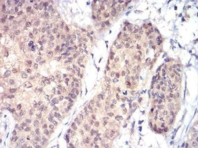Immunohistochemistry (Paraffin-embedded Sections) (IHC (p)) image for anti-RAD23 Homolog A (S. Cerevisiae) (RAD23A) antibody (ABIN4276597)