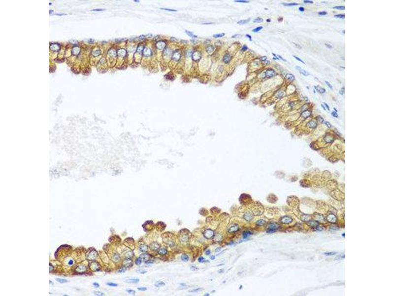 Immunohistochemistry (IHC) image for anti-Lethal Giant Larvae Homolog 2 (Drosophila) (LLGL2) antibody (ABIN2737114)