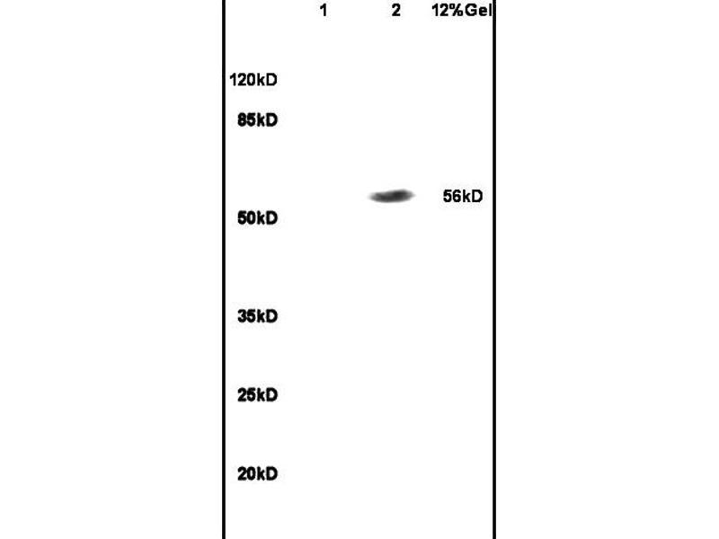 Image no. 1 for anti-Recombination Signal Binding Protein For Immunoglobulin kappa J Region (RBPJ) (AA 100-150) antibody (ABIN872972)