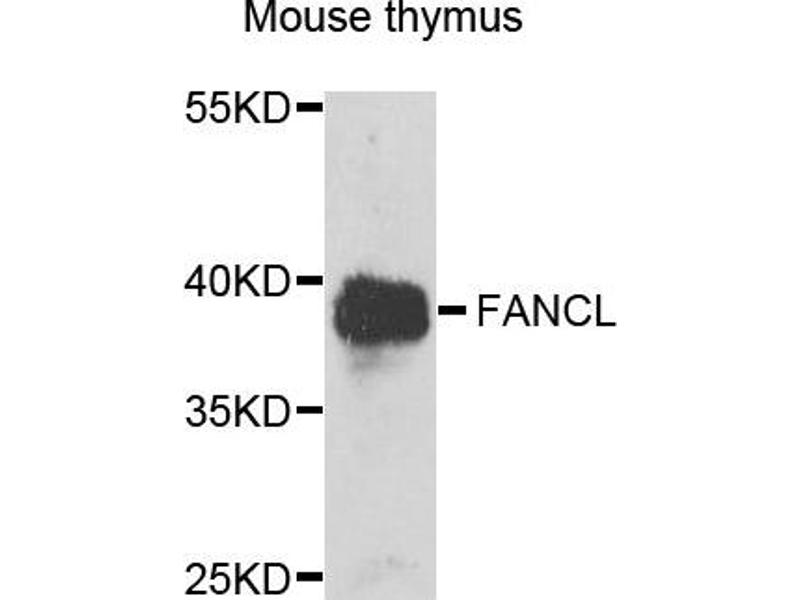 Image no. 3 for anti-Fanconi Anemia, Complementation Group L (FANCL) antibody (ABIN2562536)