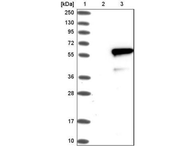 Western Blotting (WB) image for anti-IRF4 antibody (Interferon Regulatory Factor 4) (ABIN4327576)