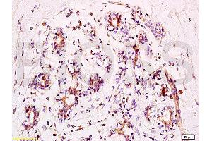 Image no. 2 for anti-BRCA1 Interacting Protein C-terminal Helicase 1 (BRIP1) (AA 960-1010), (pSer990) antibody (ABIN2170674)