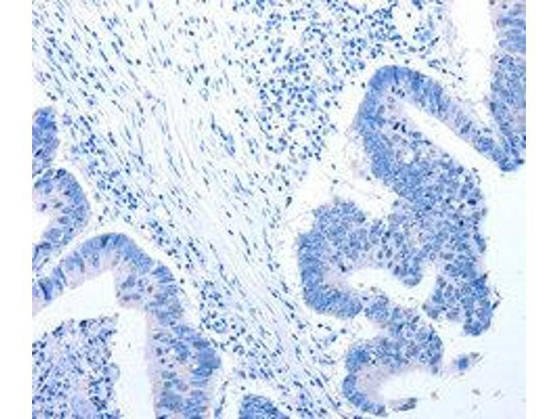 Immunohistochemistry (IHC) image for anti-Ciliary Neurotrophic Factor Receptor (CNTFR) antibody (ABIN1871941)