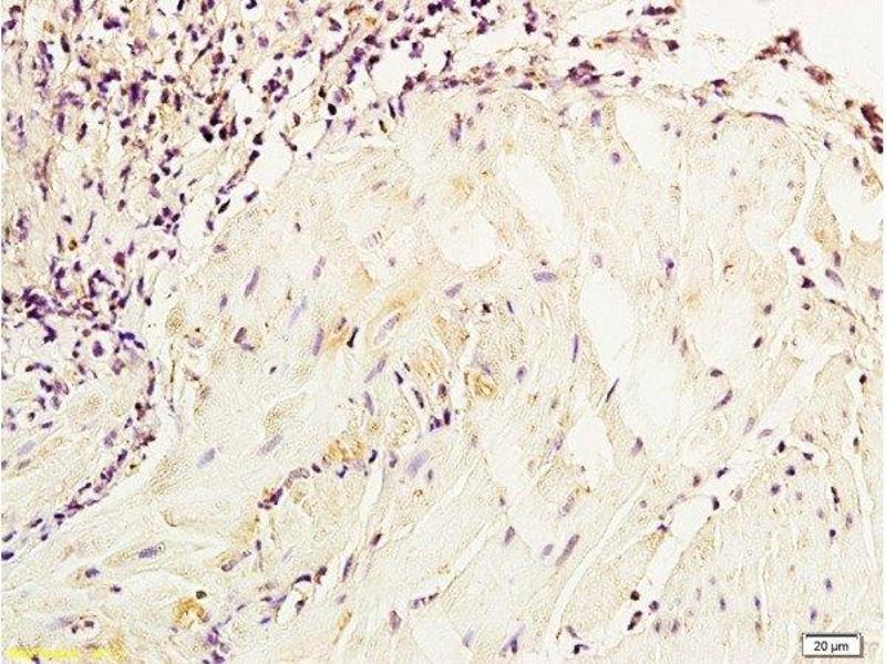 Immunohistochemistry (Paraffin-embedded Sections) (IHC (p)) image for anti-Enolase 2 (Gamma, Neuronal) (ENO2) (AA 259-286) antibody (ABIN736581)