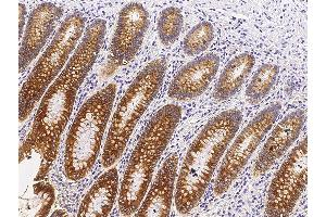 Image no. 1 for anti-Carboxylesterase 3 (CES3) (AA 1-561) antibody (ABIN2681785)
