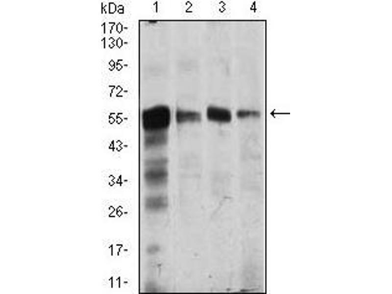 Western Blotting (WB) image for anti-Calcium/calmodulin-Dependent Protein Kinase IV (CAMK4) (AA 35-292) antibody (ABIN1098144)