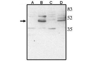 anti-Visual System Homeobox 2 (VSX2) (AA 264-361), (C-Term) antibody