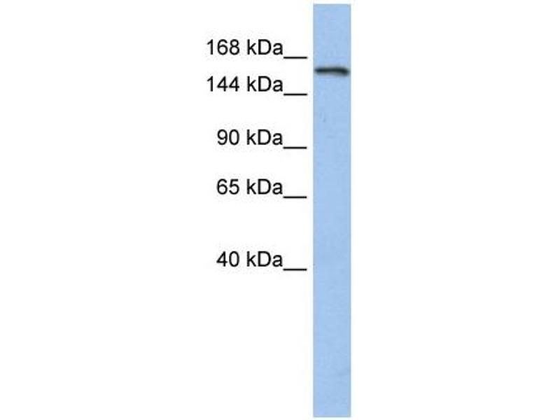 Western Blotting (WB) image for anti-Ubiquitin Protein Ligase E3A (ube3a) (N-Term) antibody (ABIN2775647)