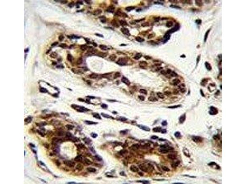 Immunohistochemistry (IHC) image for anti-Nucleolin (NCL) antibody (ABIN3032071)