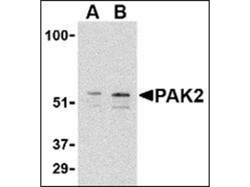 Western Blotting (WB) image for anti-PAK2 antibody (P21-Activated Kinase 2) (C-Term) (ABIN500439)