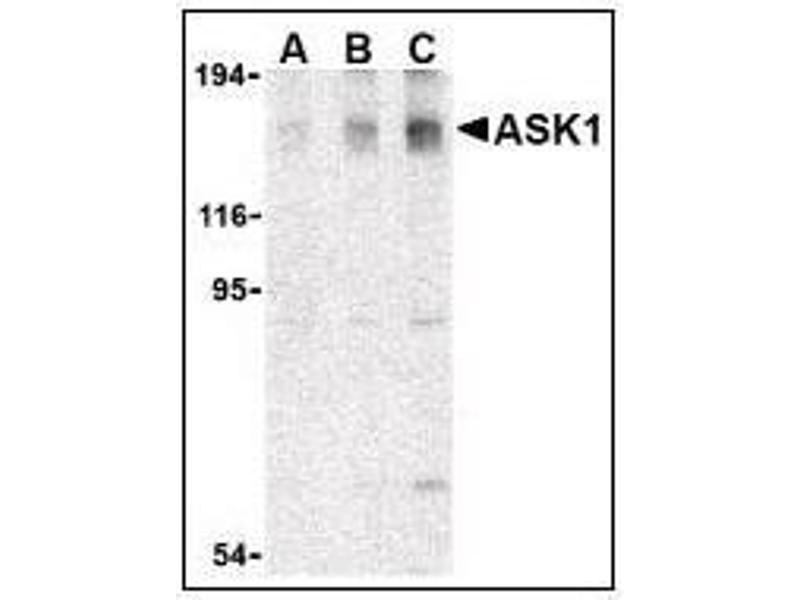 Western Blotting (WB) image for anti-Mitogen-Activated Protein Kinase Kinase Kinase 5 (MAP3K5) (C-Term) antibody (ABIN615252)