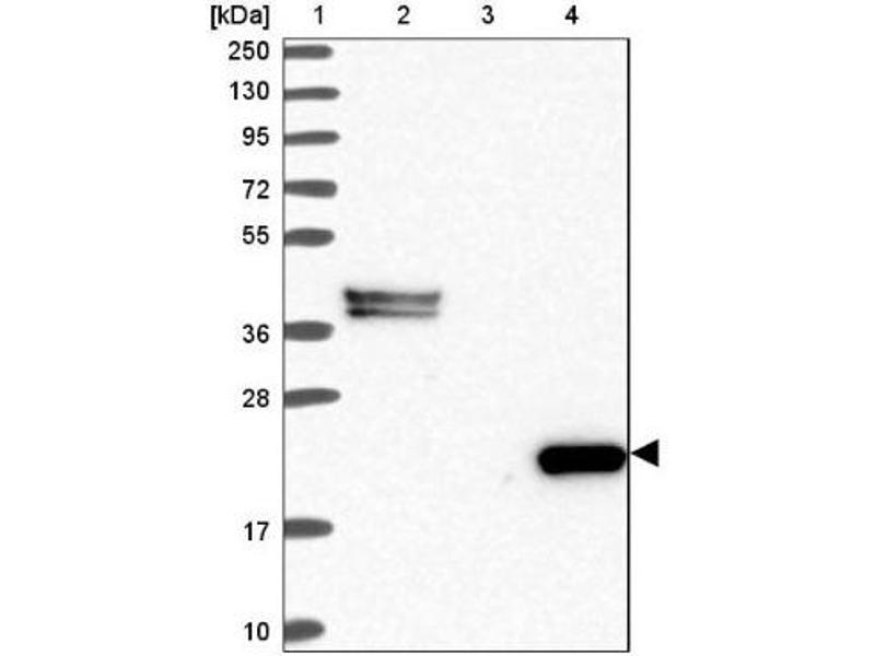 Western Blotting (WB) image for anti-C8G Antikörper (Complement Component 8, gamma Polypeptide) (ABIN4286610)