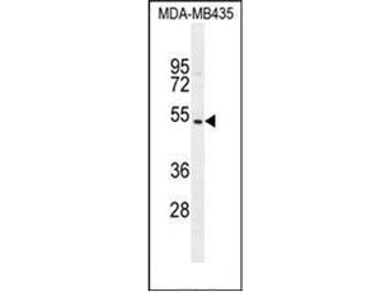 Western Blotting (WB) image for anti-GDNF Family Receptor alpha Like (GFRAL) (AA 366-394), (C-Term) antibody (ABIN952506)