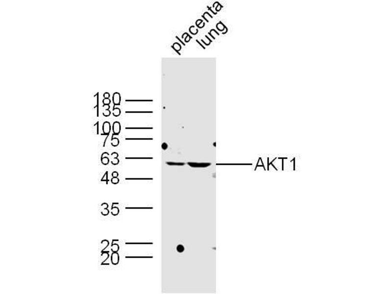 Western Blotting (WB) image for anti-AKT antibody (V-Akt Murine Thymoma Viral Oncogene Homolog 1) (AA 445-480) (ABIN725195)