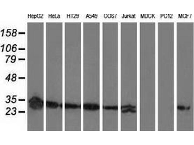 Western Blotting (WB) image for anti-Sepiapterin Reductase (SPR) antibody (ABIN2731661)