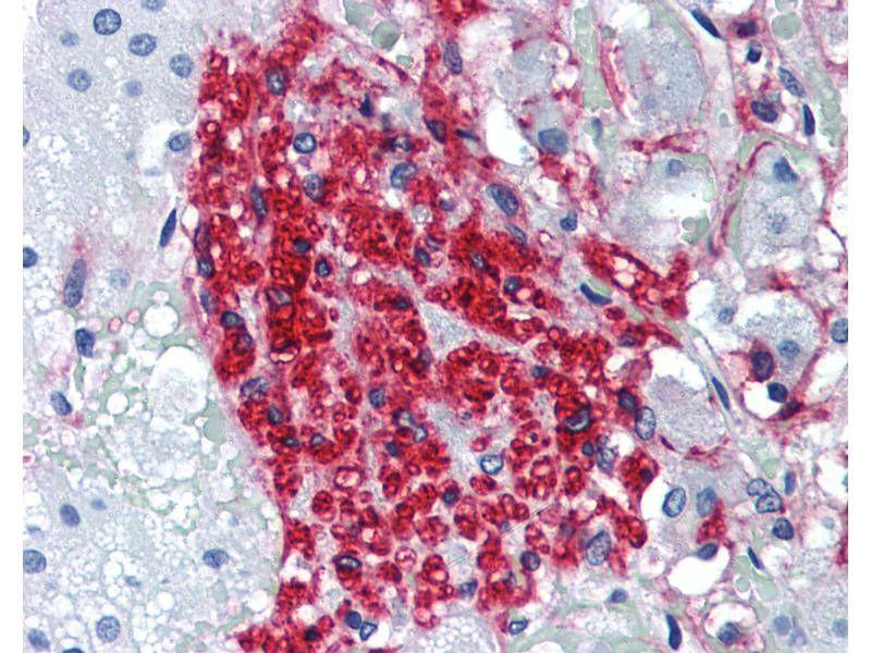 Immunohistochemistry (IHC) image for anti-Nerve Growth Factor Receptor (NGFR) (Extracellular Domain) antibody (ABIN462128)
