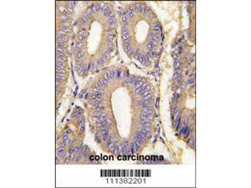 Immunohistochemistry (IHC) image for anti-PAK1 antibody (P21-Activated Kinase 1) (AA 401-430) (ABIN392432)