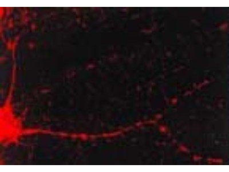 Immunofluorescence (IF) image for anti-CAMK2A antibody (Calcium/calmodulin-Dependent Protein Kinase II alpha) (ABIN151484)