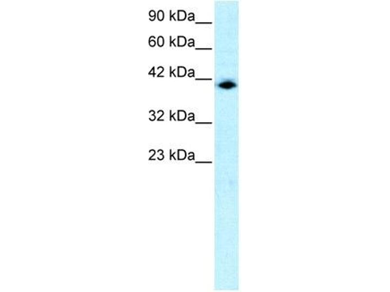 Western Blotting (WB) image for anti-Interferon Regulatory Factor 9 (IRF9) (N-Term) antibody (ABIN2777226)