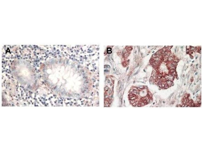 Image no. 1 for anti-V-Akt Murine Thymoma Viral Oncogene Homolog 1 (AKT1) (C-Term) antibody (ABIN94783)
