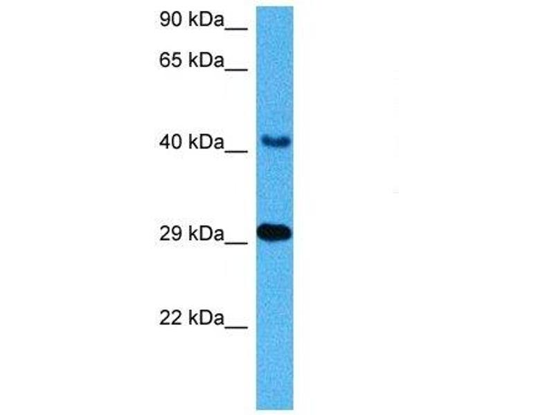 Western Blotting (WB) image for anti-Cathepsin D (CTSD) (C-Term) antibody (ABIN2776841)