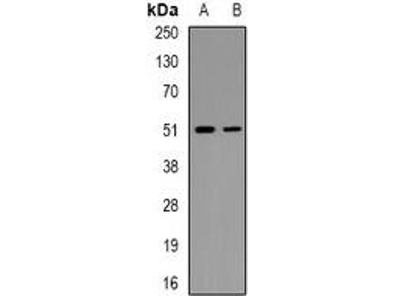 Western Blotting (WB) image for anti-MAP Kinase Interacting serine/threonine Kinase 1 (MKNK1) (pSer250) antibody (ABIN3222939)