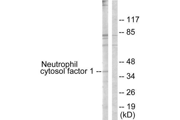 Western blot analysis of extracts from COS7 cells, treated with UV (15mins), using Neutrophil Cytosol Factor 1 (epitope around residue 304) antibody.