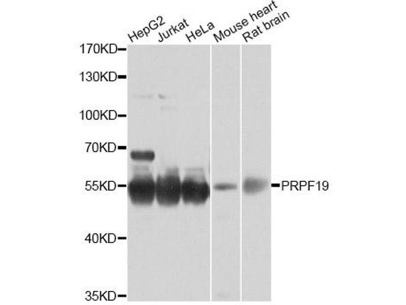 Image no. 1 for anti-PRP19/PSO4 Pre-mRNA Processing Factor 19 Homolog (S. Cerevisiae) (PRPF19) antibody (ABIN6567576)