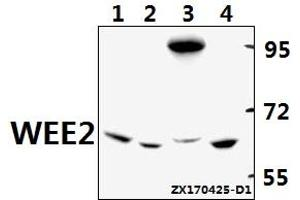 Image no. 1 for anti-WEE1 Homolog 2 (S. Pombe) (WEE2) antibody (ABIN6711194)