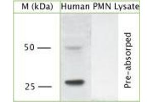 Western Blotting (WB) image for anti-Proteinase 3 (PRTN3) (C-Term) antibody (ABIN350763)