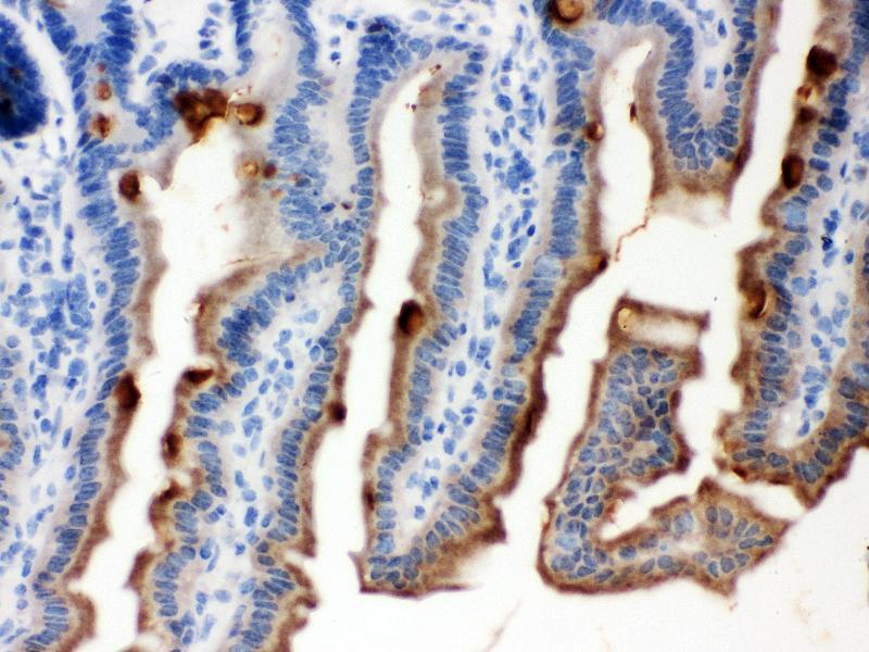 Immunohistochemistry (IHC) image for anti-serpin Peptidase Inhibitor, Clade B (Ovalbumin), Member 5 (SERPINB5) (AA 1-350) antibody (ABIN3043330)