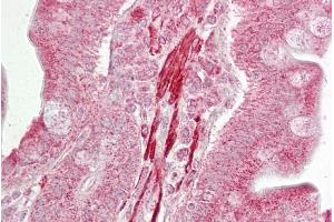 Immunohistochemistry (IHC) image for anti-ROCK2 antibody (rho-Associated, Coiled-Coil Containing Protein Kinase 2) (Middle Region) (ABIN2788813)