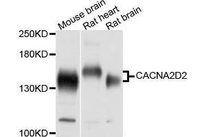 Image no. 1 for anti-Calcium Channel, Voltage-Dependent, alpha 2/delta Subunit 2 (CACNA2D2) antibody (ABIN6566845)