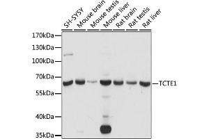 Image no. 1 for anti-T-Complex-Associated-Testis-Expressed 1 (TCTE1) antibody (ABIN6568609)