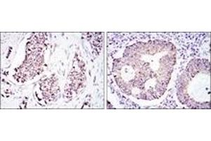 Immunohistochemistry (IHC) image for anti-Heat Shock 60kDa Protein 1 (Chaperonin) (HSPD1) antibody (ABIN1107604)