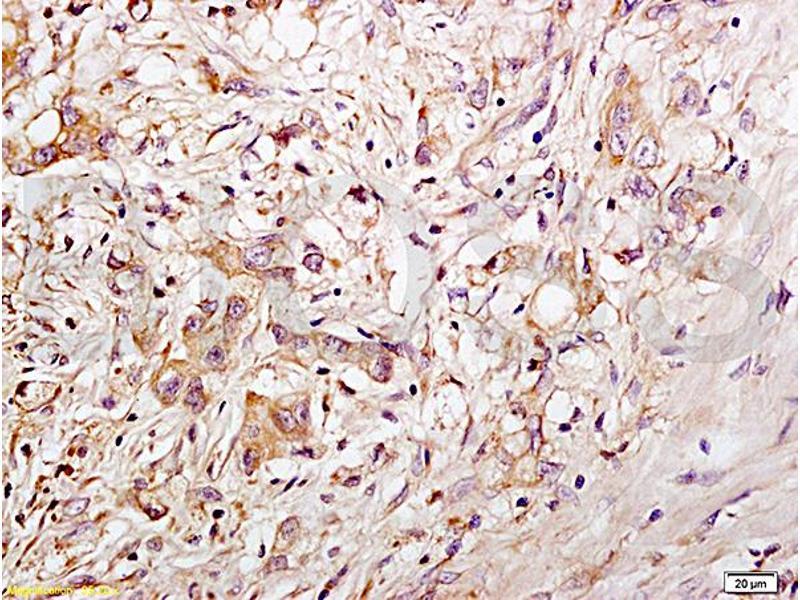 Immunohistochemistry (IHC) image for anti-CD34 Molecule (CD34) (AA 240-280) antibody (ABIN676898)