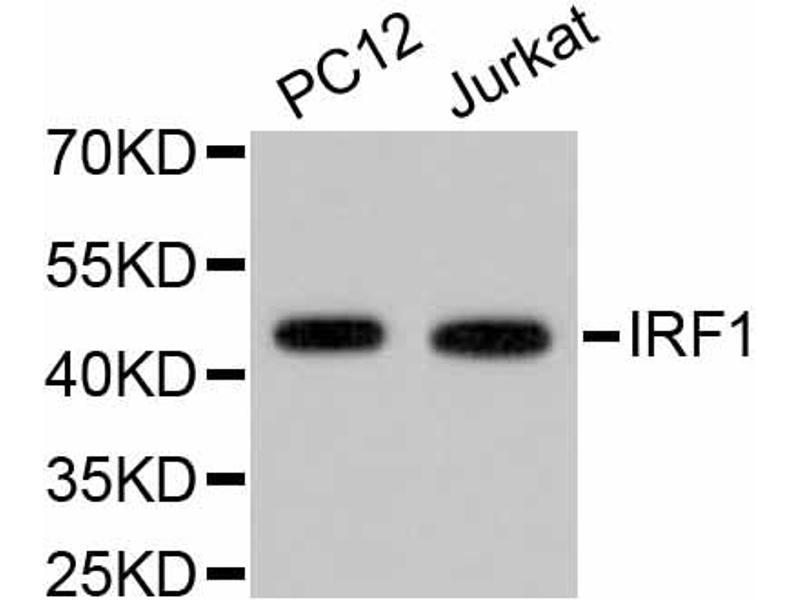 Western Blotting (WB) image for anti-Interferon Regulatory Factor 1 (IRF1) antibody (ABIN5997016)