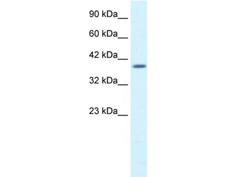 Western Blotting (WB) image for anti-Proteasome (Prosome, Macropain) 26S Subunit, Non-ATPase, 14 (PSMD14) (N-Term) antibody (ABIN182576)