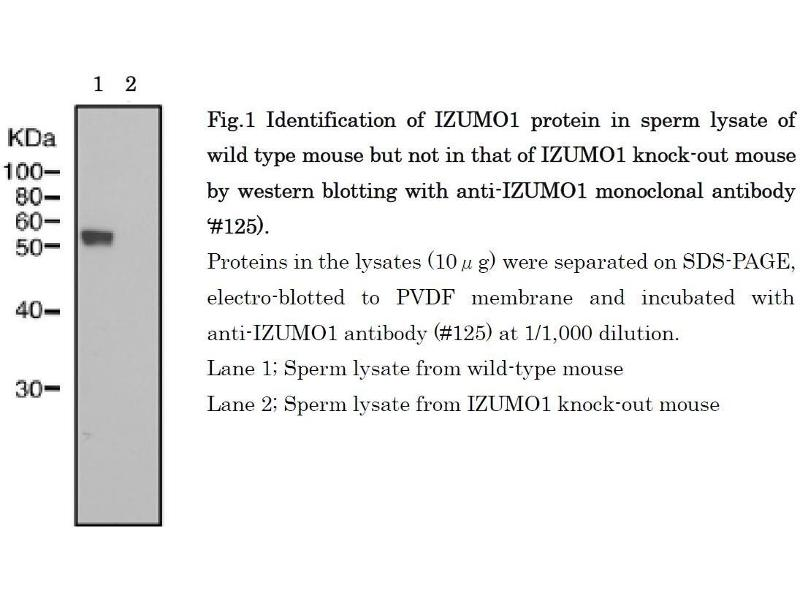 Image no. 6 for anti-Izumo Sperm-Egg Fusion 1 (IZUMO1) antibody (ABIN2452040)