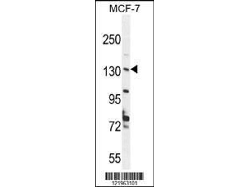 Western Blotting (WB) image for anti-UPF2 Regulator of Nonsense Transcripts Homolog (Yeast) (UPF2) (AA 630-656), (Center) antibody (ABIN654649)