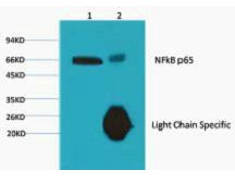 Immunoprecipitation (IP) image for anti-Nuclear Factor-KB P65 (NFkBP65) antibody (ABIN3181123)