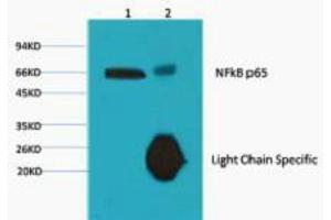 Image no. 5 for anti-Nuclear Factor-KB P65 (NFkBP65) antibody (ABIN3181123)