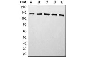 Image no. 3 for anti-Histone Deacetylase 5 (HDAC5) (C-Term) antibody (ABIN2704891)