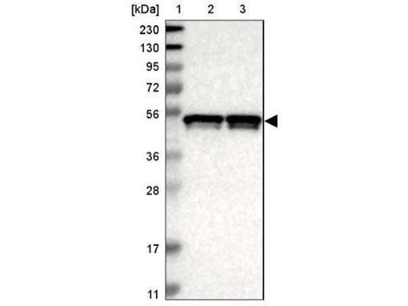 Western Blotting (WB) image for anti-IKBKG antibody (Inhibitor of kappa Light Polypeptide Gene Enhancer in B-Cells, Kinase gamma) (ABIN4324314)