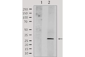 Image no. 3 for anti-Nedd4 Family Interacting Protein 1 (NDFIP1) antibody (ABIN6257368)