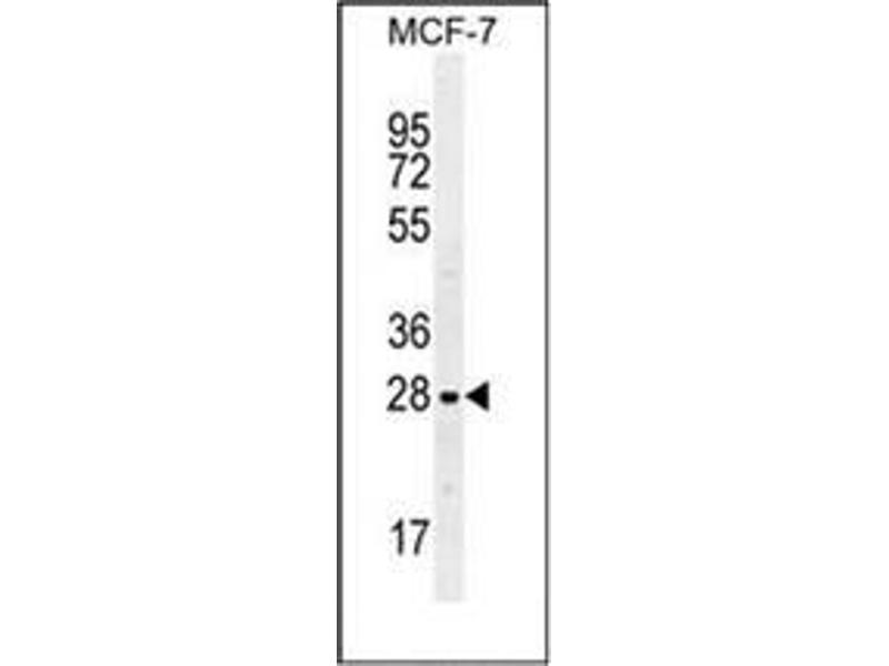 Western Blotting (WB) image for anti-Lectin, Galactoside-Binding, Soluble, 3 (LGALS3) (AA 170-199), (C-Term) antibody (ABIN952435)