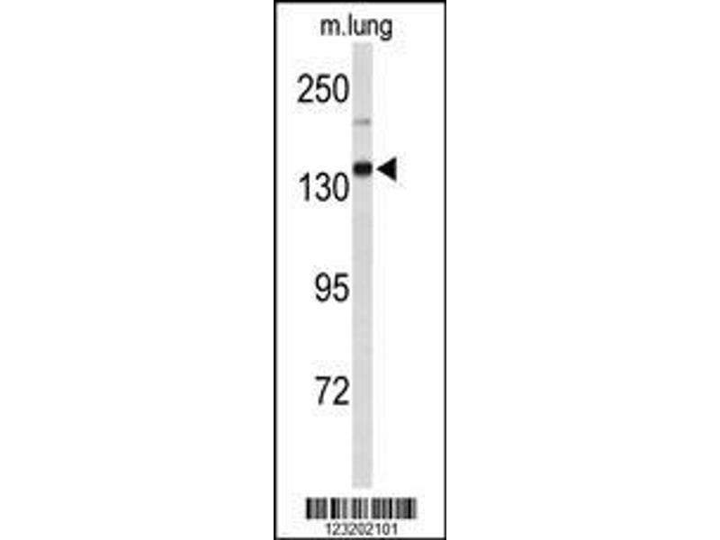 Western Blotting (WB) image for anti-Xanthine Dehydrogenase (XDH) (AA 206-234), (N-Term) antibody (ABIN653225)