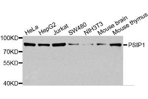 Image no. 1 for anti-PC4 and SFRS1 Interacting Protein 1 (PSIP1) antibody (ABIN6146297)