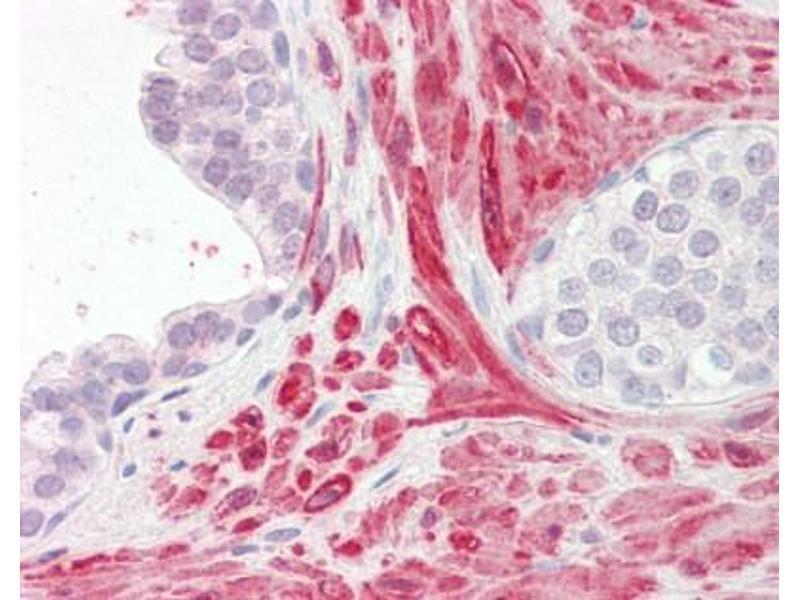 image for anti-Tetraspanin 8 (TSPAN8) (AA 178-192) antibody (ABIN462699)